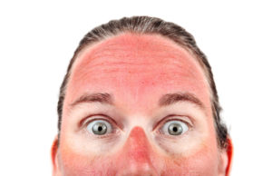 OOPS! Got a sunburn! What to do?