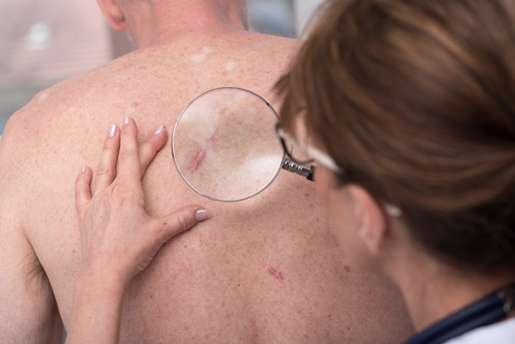 Skin cancer can be cured if detected early.